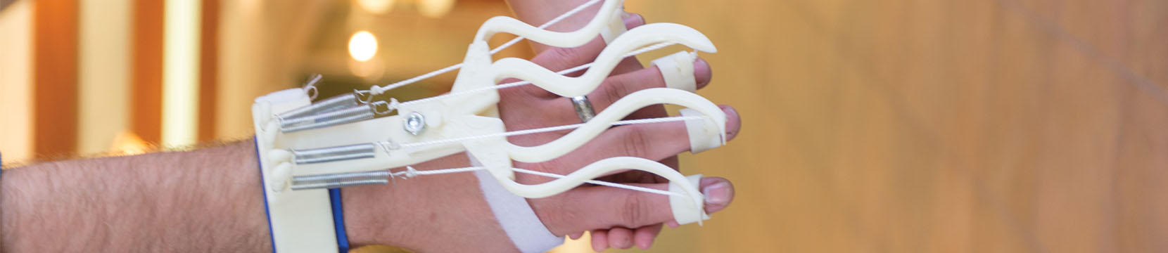 3D printer is resource for addressing patient needs